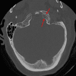 Red arrows: nondisplaced left occipital condyle fracture.