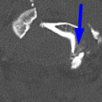 Blue arrow: displaced occipital condyle fracture.