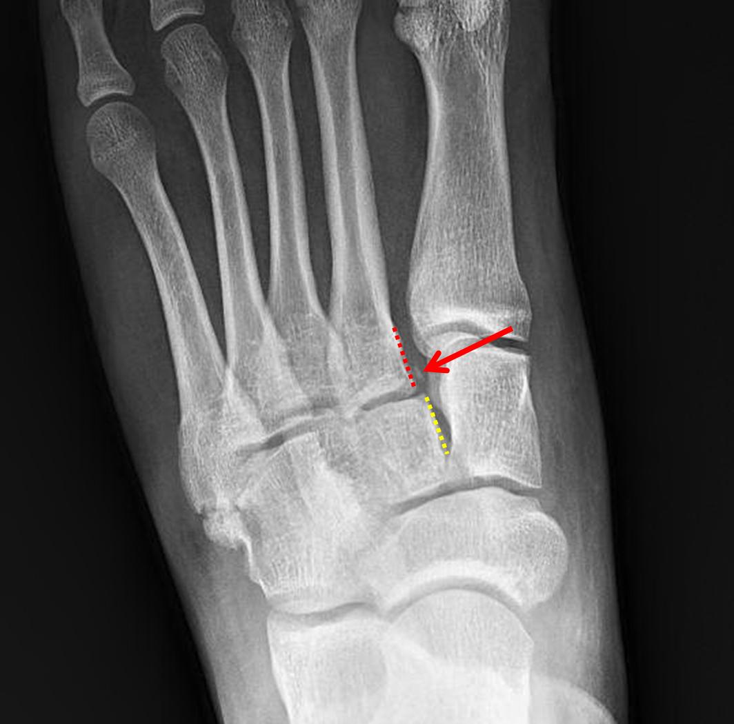 Medical Disclaimer: CaseStacks.com Case #7 Lisfranc Injury