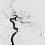 Blue arrow: ruptured left PICA aneurysm on the subsequent angiogram.