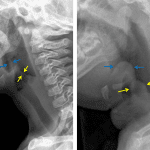 Normal comparison on the left, patient with epiglottitis on the right. Note the marked thickening of the epiglottis (blue arrows) and aryepiglottic folds (yellow arrows) in the patient on the left.