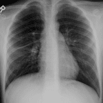 Followup radiograph in 2 weeks shows near complete resolution of the radiographic abnormality.