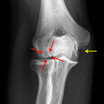 Red arrows: osteochondral lesion of the capitellum. Yellow arrow: remote avulsion fracture at the humeral attachment of the UCL.