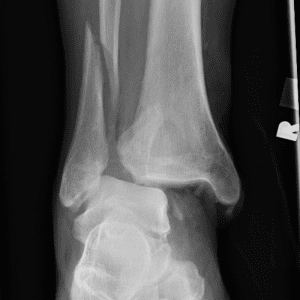 Weber type C ankle fracture