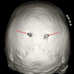 3D reconstruction demonstrating bilateral enlarged parietal foramina