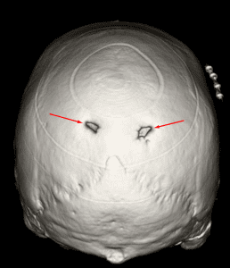 3D reconstruction demonstrating bilateral enlarged parietal foramina