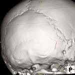 Typical appearence of the mendosal suture (red arrow) on 3D reconstructed image