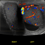 Side-by-side views of the testicles are useful to compare vascularity. Note how the left testicular vascularity is asymmetrically increased in this case of left epididymo-orchitis.