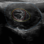 Ileocolic intussusception imaged in cross-section creating a target appearance with the intussusceptum in the center (red outline) surrounded by mesenteric fat (yellow outline) surrounded by the intussuscipiens (blue outline).