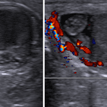 Rounded avascular structure adjacent to the testicle and epididymal head (red arrow), consistent with a torsed testicular appendage.