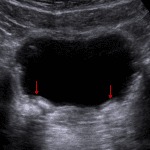 Bilateral deflux mounds resulting in a bulging contour of the bladder wall at the ureterovesicular junctions (red arrows). These demonstrate areas of calcification with posterior acoustic shadowing, which can be confused for ureteral calculi.