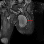 Followup MRI in this patient demonstrates an enhancing mass in the medial compartment of the left thigh (red arrow).