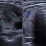 Ill-defined hypoechoic nodule in the left thyroid lobe with decreased internal vascularity (red arrows), which although not entirely specific is typical for subacute thyroiditis.